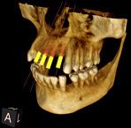 一宮市のインプラントクリニック・オーキッド歯科のCT