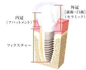 一宮市のインプラントクリニック・オーキッド歯科のインプラントの構成