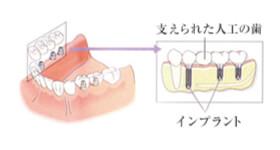 一宮市のインプラントクリニック・オーキッド歯科の奥歯を含め、複数本を失った際のインプラント治療例