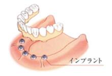 一宮市のインプラントクリニック・オーキッド歯科の、全ての歯を失った際のインプラント治療例