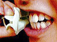 本体の左右の翼部を歯と唇の間に装着