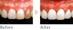 一宮市のインプラントクリニック・オーキッド歯科のセラミックラミネート施術例