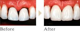 一宮市のインプラントクリニック・オーキッド歯科のオールセラミッククラウン施術例