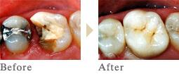 一宮市のインプラントクリニック・オーキッド歯科のオールセラミックインレー施術例