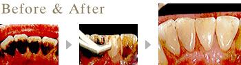 一宮市のインプラントクリニック・オーキッド歯科のJPエアフロークリーニングシステム施術例