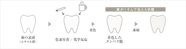 歯の着色について