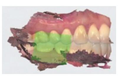 一宮市のインプラントクリニック・オーキッド歯科の3Dフルカラーのスキャニング「TRIOS3」
