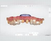 一宮市のインプラントクリニック・オーキッド歯科の3Dフルカラーのスキャニング「TRIOS3」は高精度・リアルな色調再現