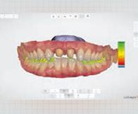 一宮市のインプラントクリニック・オーキッド歯科の3Dフルカラーのスキャニング「TRIOS3」はシェード測定