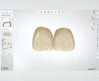 一宮市のインプラントクリニック・オーキッド歯科の3Dフルカラーのスキャニング「TRIOS3」はHD(High definition)フォト機能