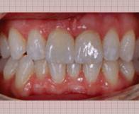 一宮市のインプラントクリニック・オーキッド歯科の3Dフルカラーのスキャニング「TRIOS3」は感染予防