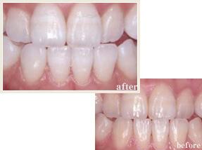一宮市のインプラントクリニック・オーキッド歯科のデュアルホワイトニング